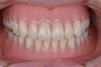 before 4.インプラントを全て撤去して<br>精密義歯にて修復