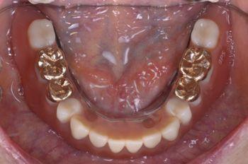 after 4.インプラントを全て撤去して<br>精密義歯にて修復