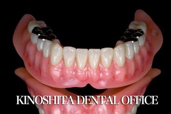 after 1.重度の歯周病を<br>精密審美義歯にて修復