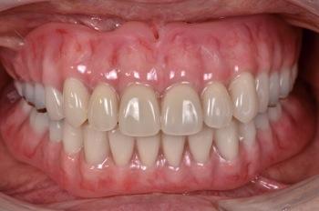 after 2.噛み合わせのズレと重度の虫歯を、精密審美義歯にて修復