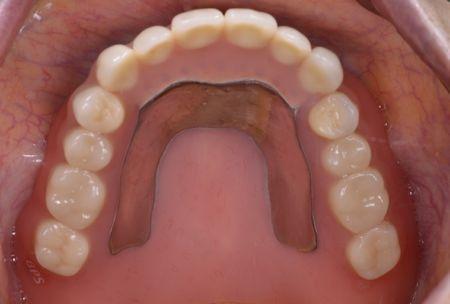 after 3.重度の歯周病と虫歯を、精密義歯及びセラミッククラウンにて修復