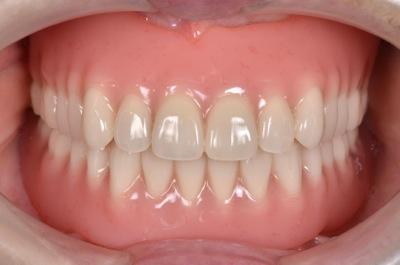 after 6.重度の歯周病を精密義歯にて修復
