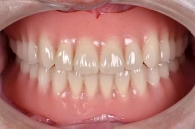after 5.重度の歯周病と虫歯を、精密義歯修復にて修復