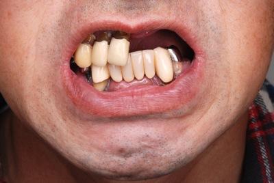 before 5.重度の歯周病と虫歯を、精密義歯修復にて修復