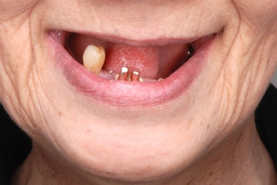 before 6.重度の歯周病を精密義歯にて修復