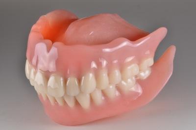 after 10.歯科恐怖症を伴う重度の歯周病を、精密義歯にて審美的に修復