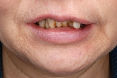 before 11.重度の歯周病を精密義歯にて、審美的によく噛めるように修復