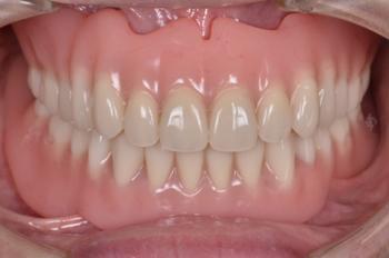 before 20.部分入れ歯が歯周病によってグラグラして噛めない状態を、精密入れ歯にて修復
