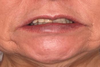 before 19.部分入れ歯が歯周病でグラグラして噛めない状態を、精密入れ歯にて修復