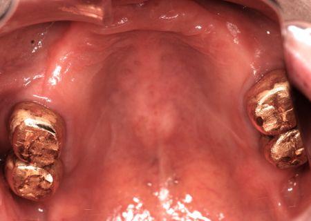 before 3.重度の歯周病と虫歯を、精密義歯及びセラミッククラウンにて修復