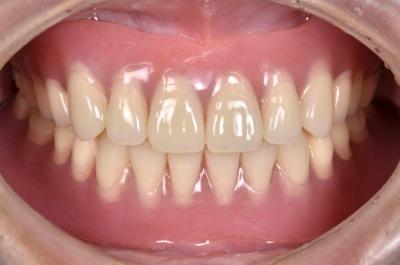 after 12.噛めない入れ歯をBPS精密義歯にて修復
