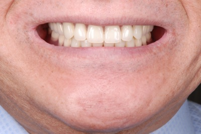 before 12.噛めない入れ歯をBPS精密義歯にて修復