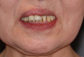 before 2.噛み合わせのズレと重度の虫歯を、精密審美義歯にて修復