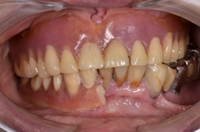 before 13.噛めない入れ歯を精密義歯にて修復