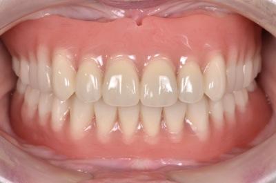 after 13.噛めない入れ歯を精密義歯にて修復