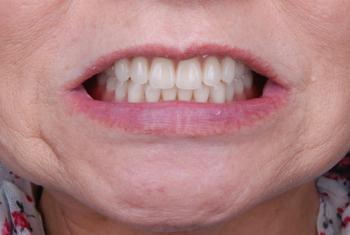 after 19.部分入れ歯が歯周病でグラグラして噛めない状態を、精密入れ歯にて修復