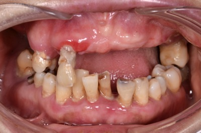 before 15.重度の歯周病を精密義歯修復 及びセラミック、精密部分入れ歯にて審美的に修復