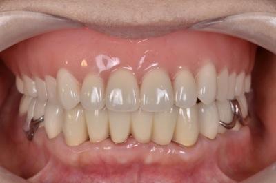 after 15.重度の歯周病を精密義歯修復 及びセラミック、精密部分入れ歯にて審美的に修復