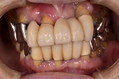before 16.重度の歯周病を精密入れ歯にて修復した治療