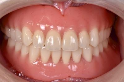 after 16.重度の歯周病を精密入れ歯にて修復した治療