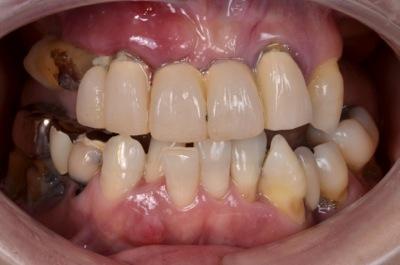 before 17.歯科恐怖症による重度の虫歯を、精密入れ歯にて修復した治療