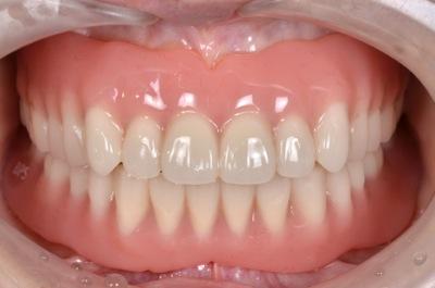 after 17.歯科恐怖症による重度の虫歯を、精密入れ歯にて修復した治療