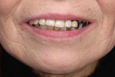 before 7.噛めない入れ歯を精密義歯にて修復