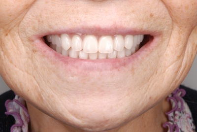 after 7.噛めない入れ歯を精密義歯にて修復