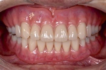 after 18.歯の破折やインプラント治療による噛み合わせのズレを、精密審美入れ歯にて修復した治療
