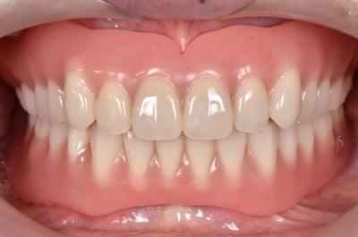 after 8.噛めない入れ歯とインプラントを、精密義歯にて修復