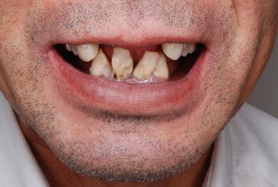 before 9.重度の歯周病を精密義歯にて修復