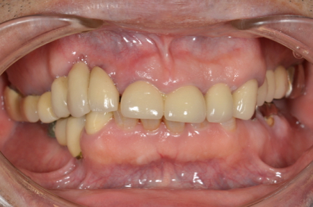 before 18.歯の破折やインプラント治療による噛み合わせのズレを、精密審美入れ歯にて修復した治療