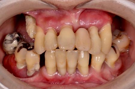 before 10.歯科恐怖症を伴う重度の歯周病を、精密義歯にて審美的に修復