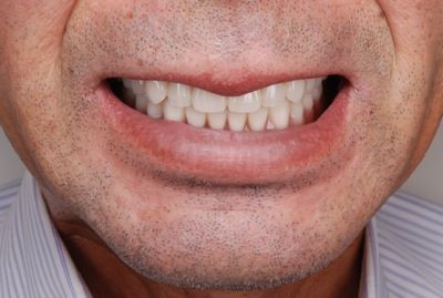 after 9.重度の歯周病を精密義歯にて修復
