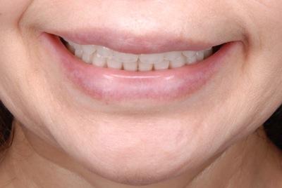 after 11.重度の歯周病を精密義歯にて、審美的によく噛めるように修復