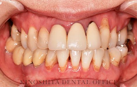 before 22.セラミック審美修復を伴う、精密部分入れ歯治療