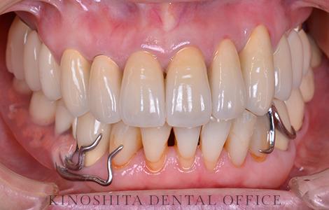 after 22.セラミック審美修復を伴う、精密部分入れ歯治療