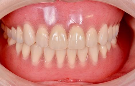 after 21.重度の虫歯を精密入れ歯にて修復