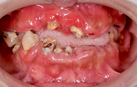 before 21.重度の虫歯を精密入れ歯にて修復